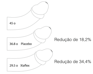Segurança Clínica e Eficácia da Injeção da Colagenase Clostridial Histolítica (Xiaflex) em Pacientes com Doença de Peyronie: Fase 3 estudo Open-Label.